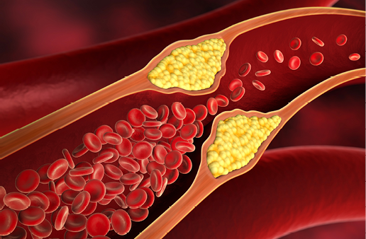 Ucpaná žíla při vysokém cholesterolu